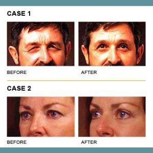 Before and after images of two eyelid surgery patients