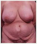 Before Tummy Tuck and Breast Reduction