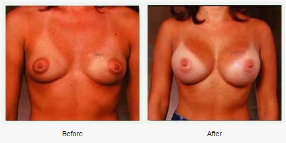 Breast Augmentation Case 1