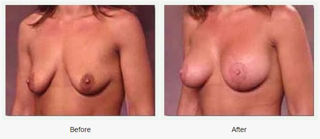 Breast Augmentation Case 2