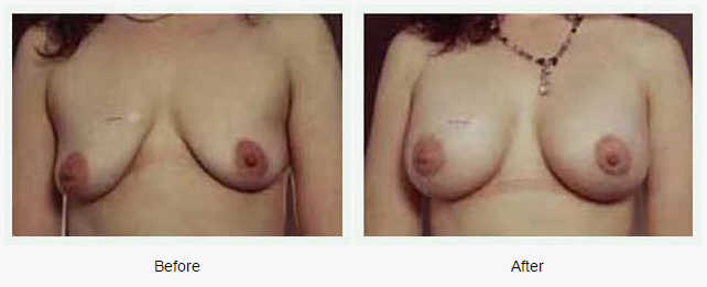 Breast Augmentation Case 3
