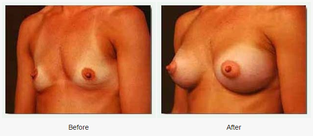 Breast Augmentation Case 4