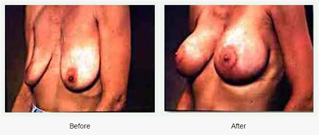 Breast Augmentation Case 5