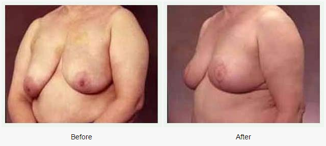 Breast Lift Case 2