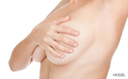 Breast Lift Photo Gallery