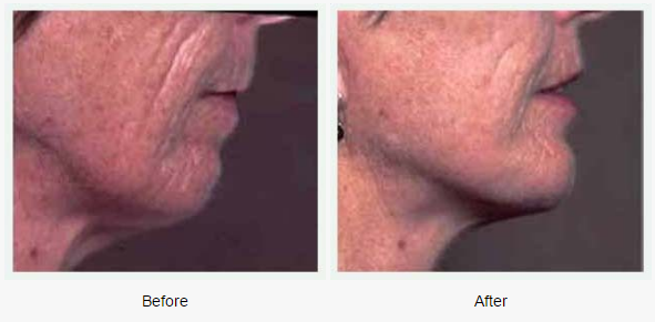 Chin Augmentation Case 1