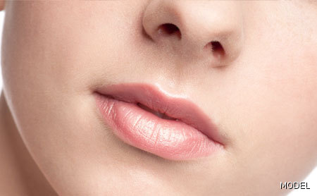 Lip Augmentation Photo Gallery