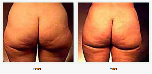 Liposuction Case 1