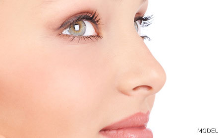 Rhinoplasty Photo Gallery