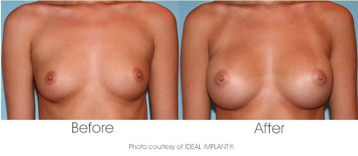 IDEAL IMPLANT Before & After